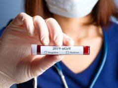 coronavirus nettuno