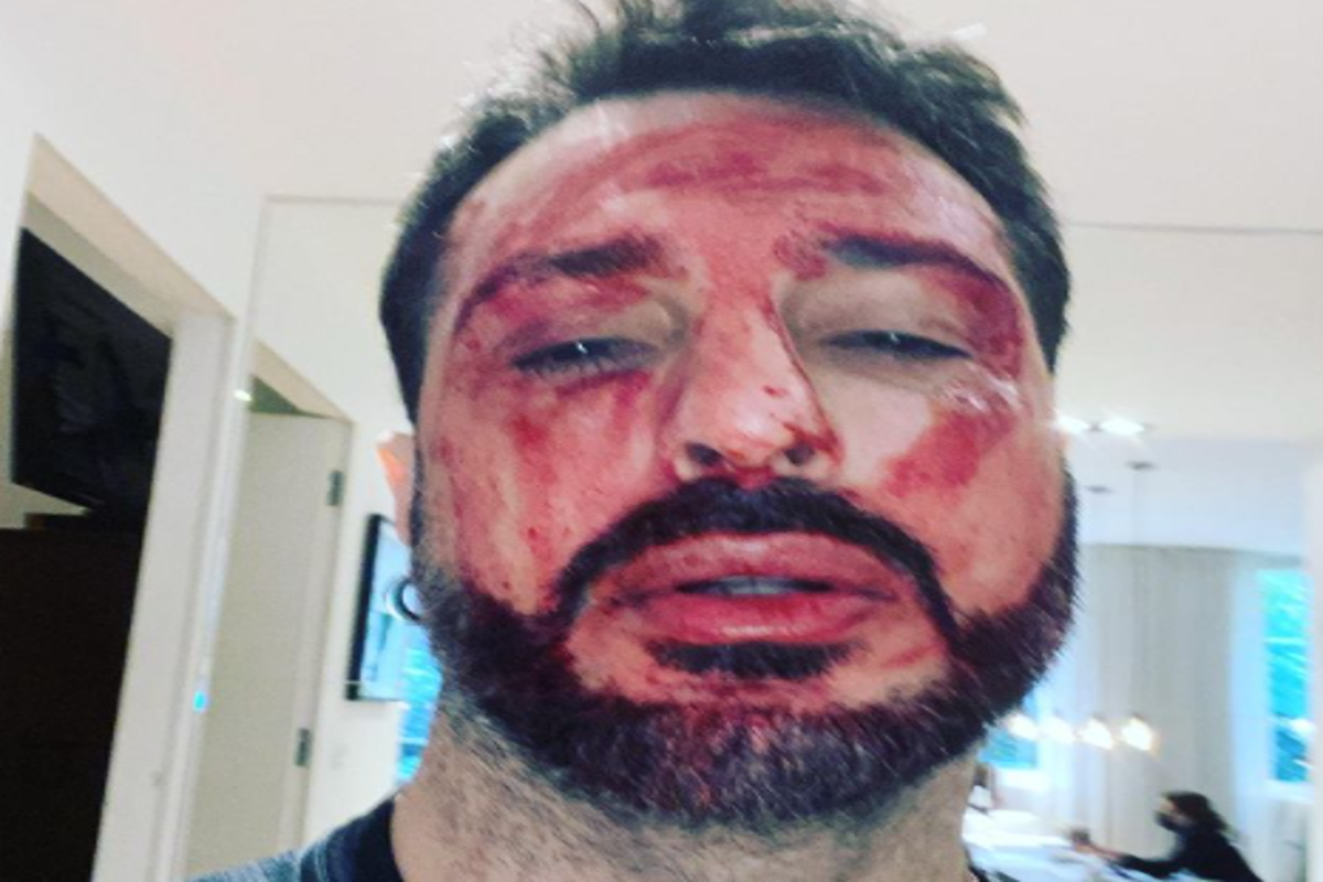 Fabrizio Corona polsi instagram